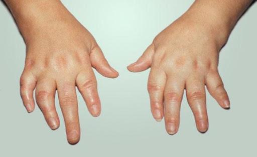 Rheumatoid Arthritis in Children